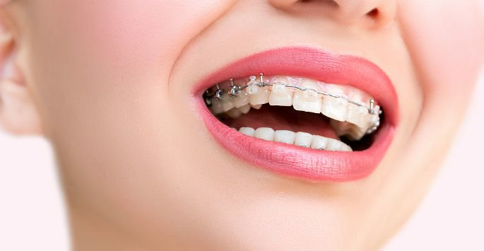 The Advantages of Clear Braces in Orlando