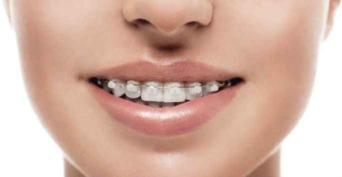 Why Get Clear Braces?