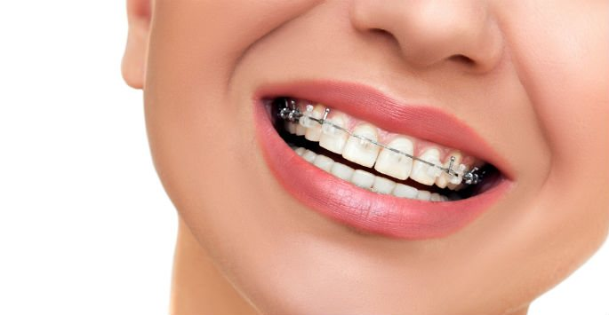 Clear Braces for a Discreet Option