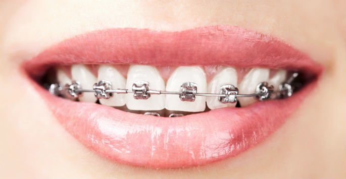 When to Visit an Orthodontist