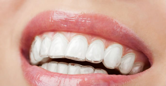 Invisalign Treatment in Oviedo: What are the Benefits?