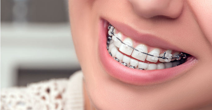 Advantages of Clear Braces in Orlando, FL